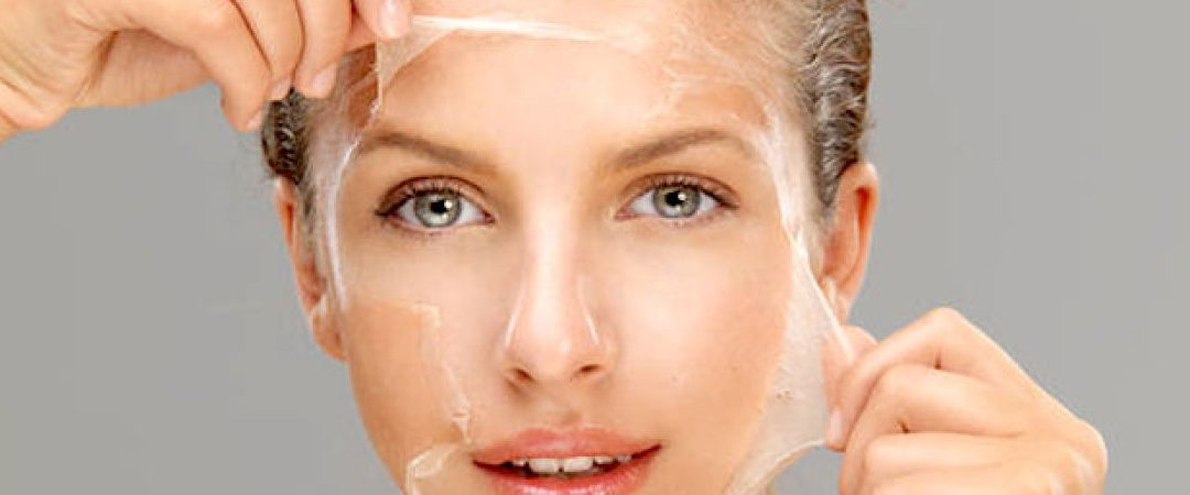 What Is Chemical Peeling?