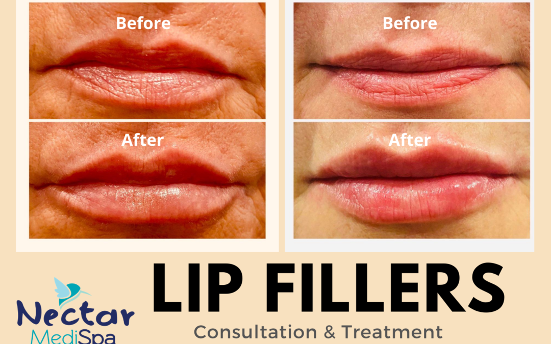 Lip Fillers Consultation and Treatment Medical spa
