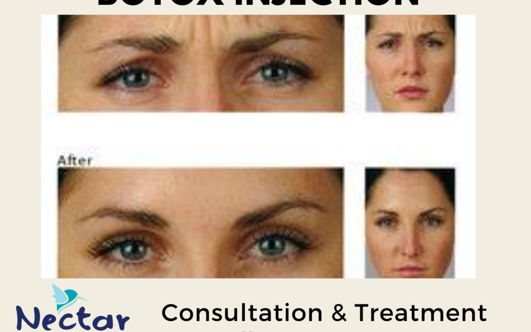 Botox Injection Treatment & Consultation Services