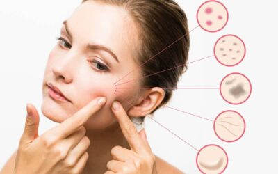 Acne treatments: Medical procedures may help clear skin